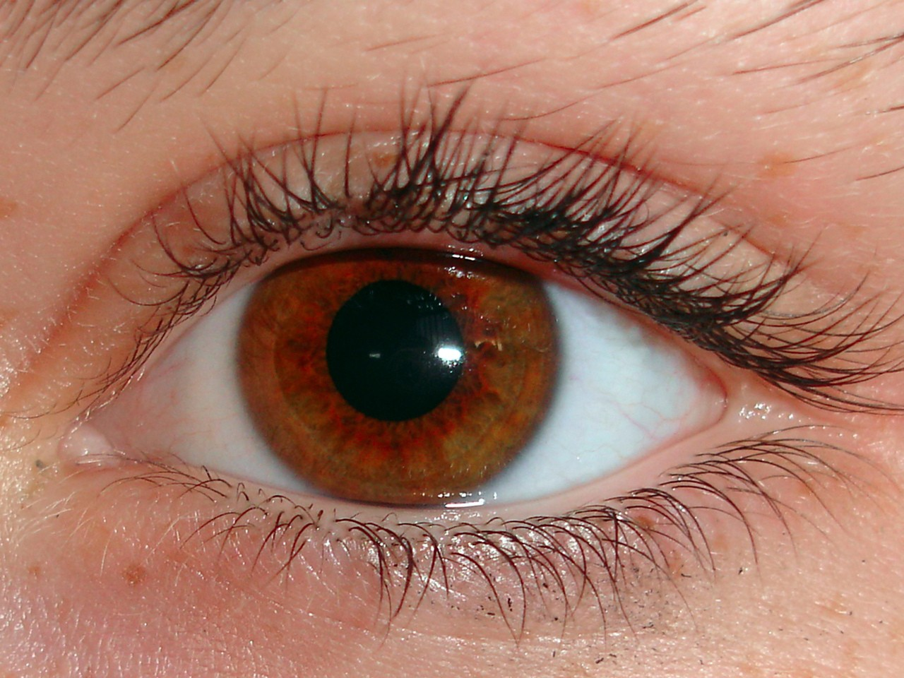 Mikrodermabrazja – kompleksowa odnowa skóry
